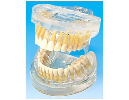 HL/Y10010 透明成人牙模型