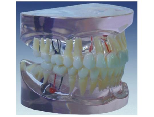 HL/Y10011-1 透明牙体病理模型