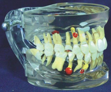 HL/Y10011-2 透明牙体...
