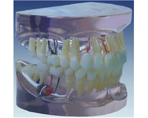 HL/Y10012-1 透明乳牙...