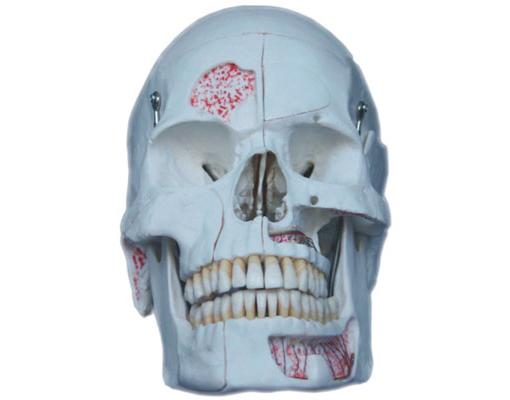 HL/Y10023-1 仿真头颅模型